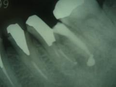endo14-2