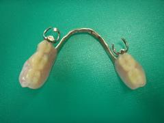 implant_10