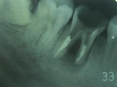 implant_2