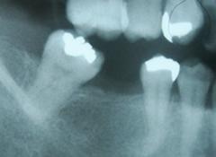 implant_3