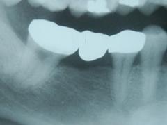 implant_4