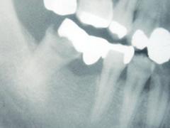 implant_5
