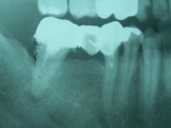 implant_6