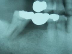 implant_7