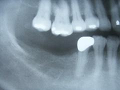 implant_8