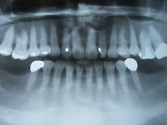 implant_9