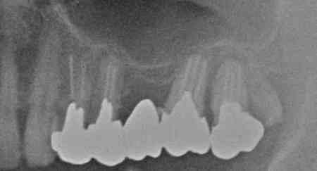 上顎8部の過剰歯