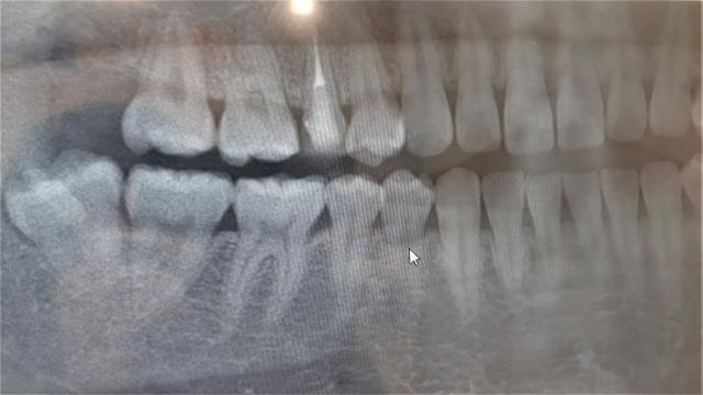 写真ACより、、意外と難抜歯の予感ありますね
